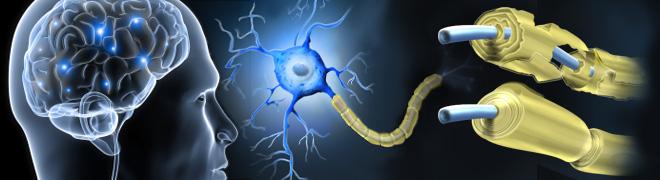 20131024103729-multiple_sclerosis