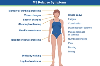 Image MS symptoms