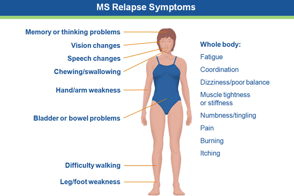 MS relapse symptoms image