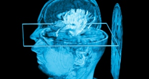Image of gene control in brain