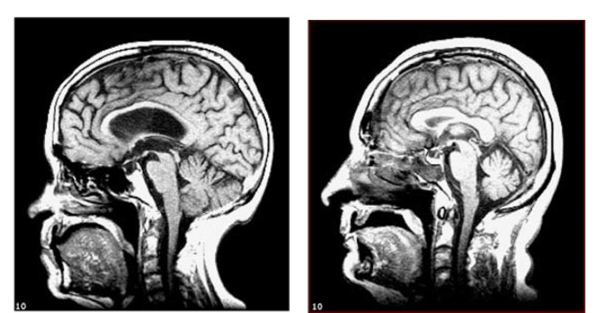 Midline sagittal MRI scans to illustrate subjects with relatively more (a) and less (b) atrophy
