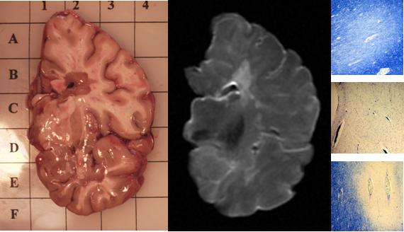 Image brain slice with MS