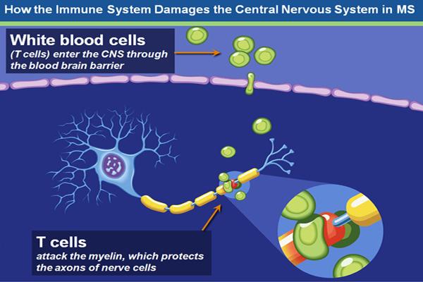 Imune system damage