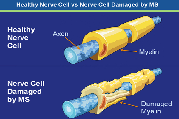 Nerve cell damage