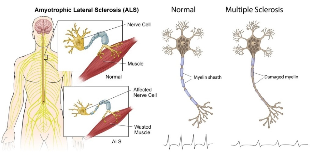 The difference between ALS and MS (1/3)