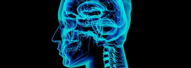 Image head/brain